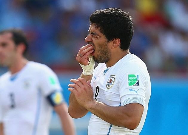 Luis Suarez holding his teeth